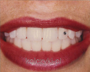 Biżuteria nazębna, kryształki na zęby Swarovski